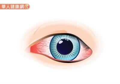 眼白泛黃 有血絲=肝功能異常?中醫保養秘訣大公開