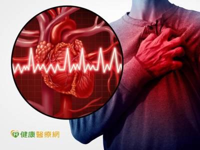 嚴重血管鈣化成隱憂 旋磨術降堵塞風險