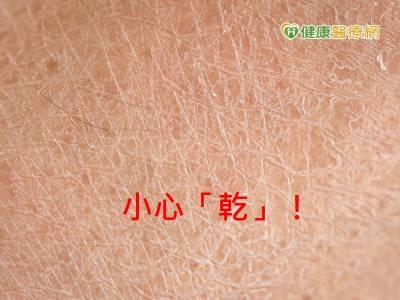冬天皮膚易乾癢 恐是乾燥性皮膚炎