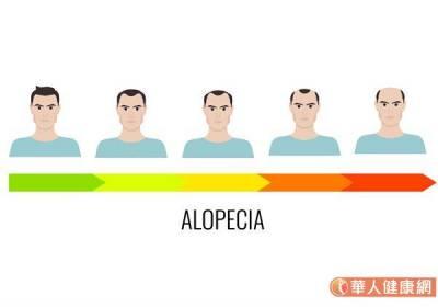 頻掉髮都是換季惹的禍?小心雄性禿找上門,埋下禿頭危機