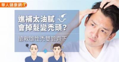 進補太油膩會掉髮變禿頭?搶救雄性禿雙管齊下
