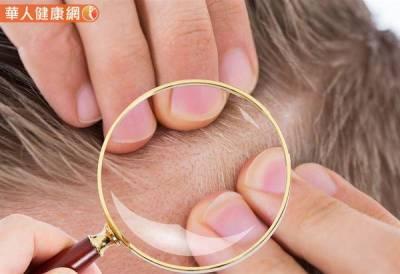 運動過度會掉髮?醫師:對抗雄性禿早診斷治療,成功變「髮」!