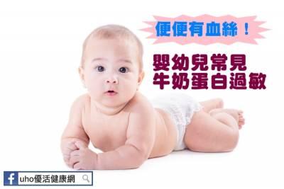 便便有血絲!嬰幼兒常見牛奶蛋白過敏