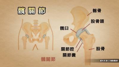 六個症狀 屁股發出的警訊