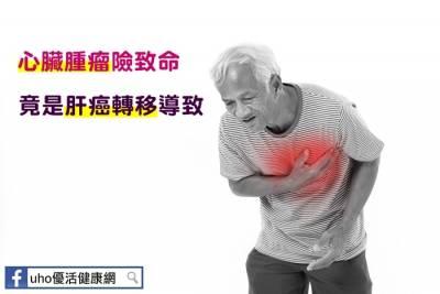 心臟腫瘤險致命 竟是肝癌轉移導致