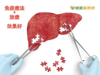 抗肝癌新招式 放療合併免疫療法成效佳