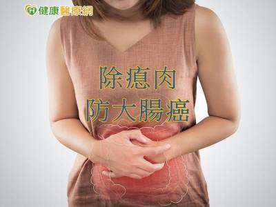要做大腸鏡嗎? 從12警訊辨腸癌風險