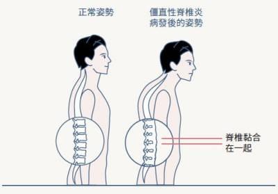 20歲壯男超忍痛 就醫才知罹患僵直性脊椎炎,髖關節沾黏已不可逆