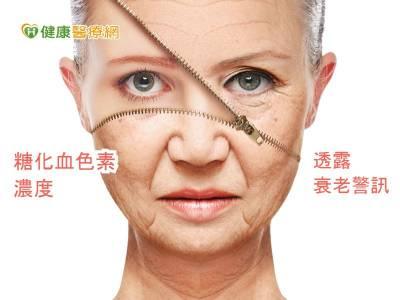 糖化血色素濃度 研究:透露衰老警訊