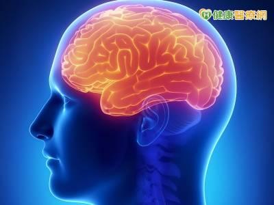腦膜瘤面貌多樣 難用單一症狀判斷
