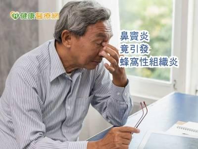 感冒要小心 蜂窩組織炎兇手竟是鼻竇炎