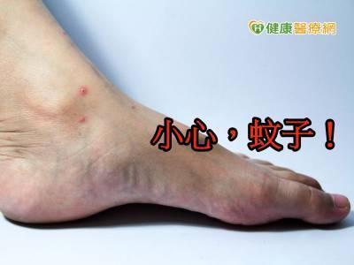 77歲嬤罹慢性病 遭蚊子叮咬抓破皮險截肢