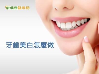 養出潔白牙齒 醫:先診間美白再居家美白