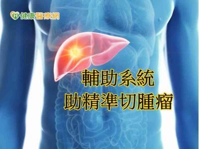 螢光顯影輔助系統 助醫師精準切腫瘤