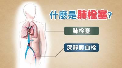 致命率高 症狀卻不明顯 這樣的胸悶易喘疾病讓醫師最害怕