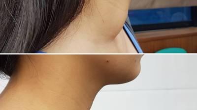 甲狀腺結節脖子腫 微創射頻消融免留疤