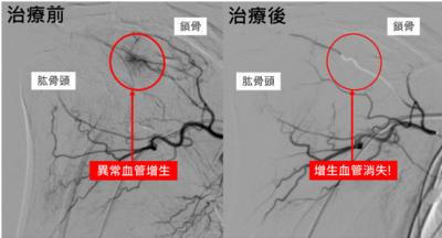 五十肩治療效果差 栓塞增生血管新選項