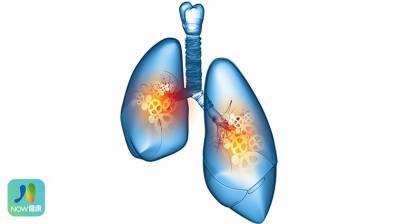 小細胞肺癌6成活不過1年 免疫療法開啟治療新契機