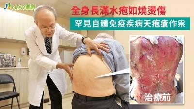 全身長滿水疱如燒燙傷 罕見自體免疫疾病天疱瘡作祟