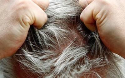 五種竅門讓妳再也沒有白頭髮!沒想到頭髮沒吹乾竟然也是白頭髮的產生原因....