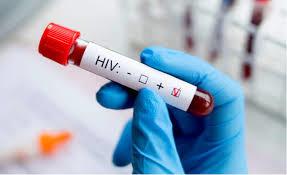 愛滋病檢查克服恐懼
