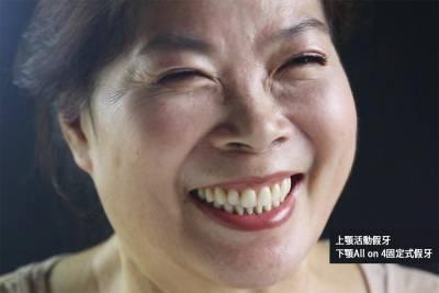【有影】活動假牙PK植牙搭配假牙哪種好? 多顆缺牙者必懂的「經濟學」