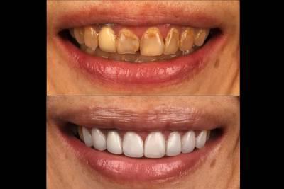 【有影】牙齒為啥變黃?變暗沈? 日常生活牙齒染色地雷「它」最棘手