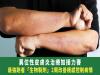 異位性皮膚炎治療如接力賽 最強跑者「生物製劑」2周改善癢感控制病情