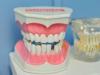 「植牙」前的必做功課!不是人人都適合植牙?