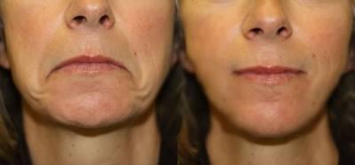 超神奇!5組超簡易瘦臉操做一週,緊膚 去皺 尖臉,完美臉型跟著你!這太有效了,我捨不得不分享!