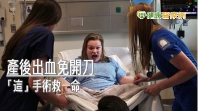 產後出血免開刀 子宮動脈栓塞術救一命