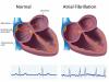 「主動脈剝離」容易破裂造成大出血或心包填塞死亡 醫曝警訊