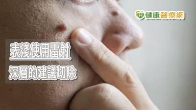 眼皮長痣影響前程? 雷射手術清除沒困擾