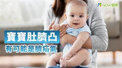 1歲以下嬰兒肚臍凸又腫竟是臍疝氣 3狀況應立即手術