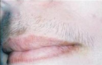 鬍子超長有夠像男人,超簡單脫唇毛的方法讓你嘴巴不再髒髒的!