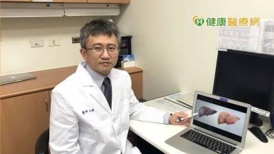 小型肝癌檢測不易 MRI搭配標靶型顯影劑提高準確率