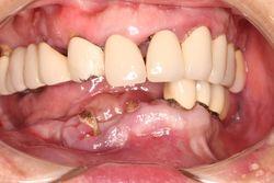 揭開植牙神秘面紗 All-on-4全口速定植牙適合我嗎?
