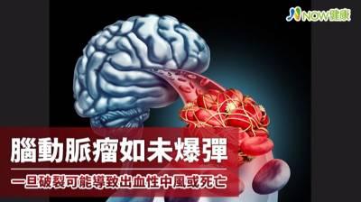 腦動脈瘤如未爆彈 一旦破裂可能導致出血性中風或死亡