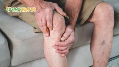 八旬老翁腿部傷口10年好不了 治療靜脈曲張終癒合