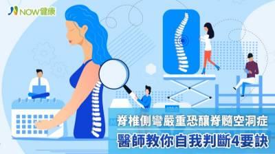 脊椎側彎嚴重恐釀脊髓空洞症 醫師教你自我判斷4要訣