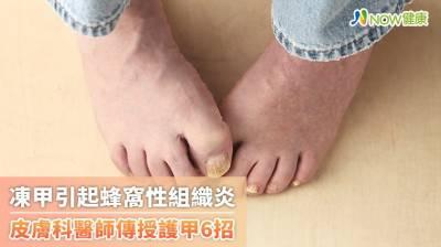 雙腳大拇指趾蜂窩性組織炎竟是凍甲惹禍 醫揭常見原因