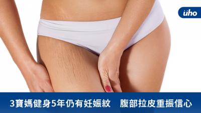 3寶媽健身5年仍有妊娠紋 腹部拉皮重振信心
