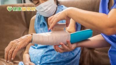 骨鬆性骨折該開刀還是保守治療? 骨科醫師解答