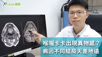 喉嚨卡卡出現異物感不是小問題 病因不同結局天差地遠