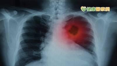 10年內罹患3種癌症! 個人化治療策略提升存活率