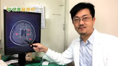 視力模糊 無力恐多發性硬化症? 健保藥物降5成復發率