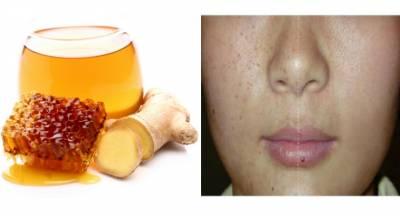 太神奇了!喝了蜂蜜配生薑,兩個月後減10公斤,臉上斑也不見了!快分享給朋友吧!
