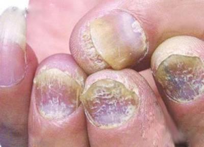 如果指甲出現這十種可怕現象,請馬上就醫吧!!!