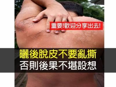 曬後脫皮不要亂撕 正確的曬後搶救方法