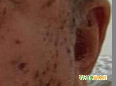 防曬不確實 年輕人也有「老人斑」